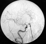 Аневризма передней соединительной артерии при ангиографии